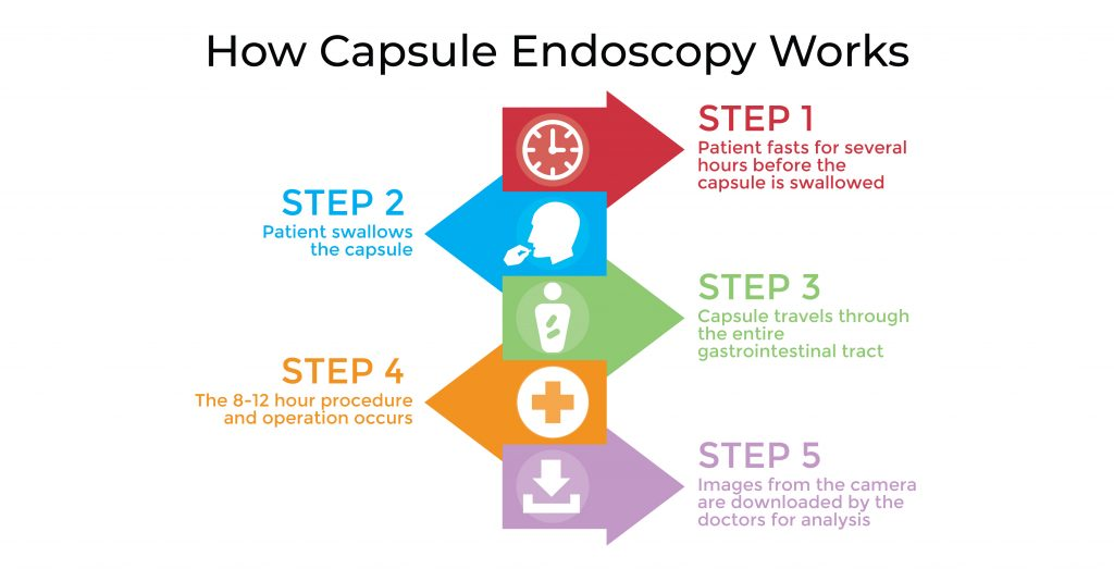 How Capsule Endoscopy Works